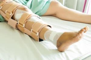 woman wearing a leg brace, Broken leg